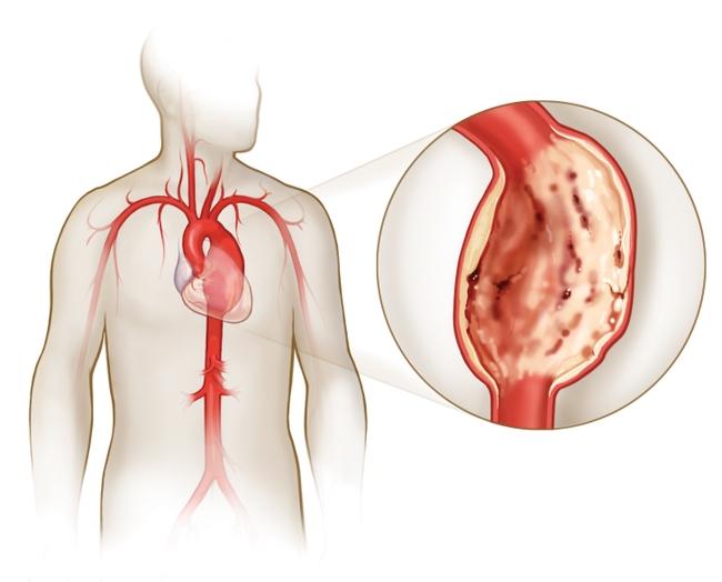 Аневризма брюшного отдела аорты симптомы, причины