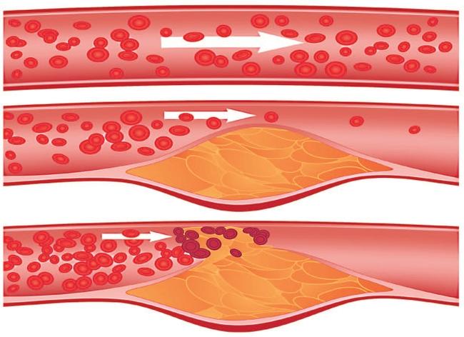 Атеросклероз: симптомы, причины, диагностика, лечение - MedStream
